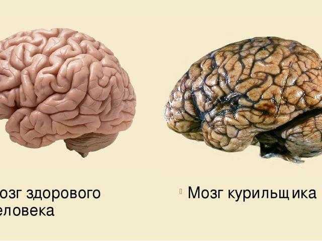 Топ-10 лучших витаминов для мозга: для памяти и работы