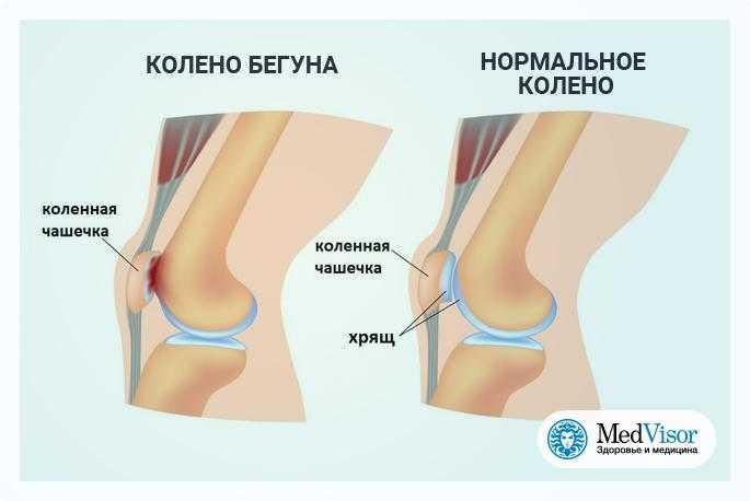 Что делать, если болят колени при приседании и вставании: чем лечить боли и хруст в суставах
