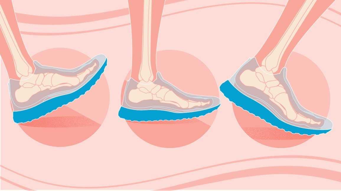 Как правильно выбирать кроссовки для бега