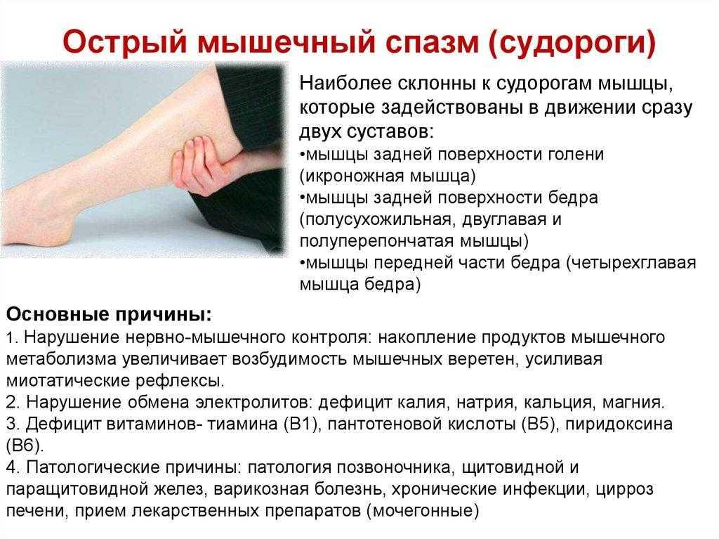 Судороги икроножных мышц: причины и лечение, что делать если ногу сводит, почему она болит