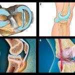 Почему болят колени при приседании и вставании? что делать?
