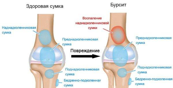Хруст в коленях при приседании: возможные причины и что делать | все о суставах и связках