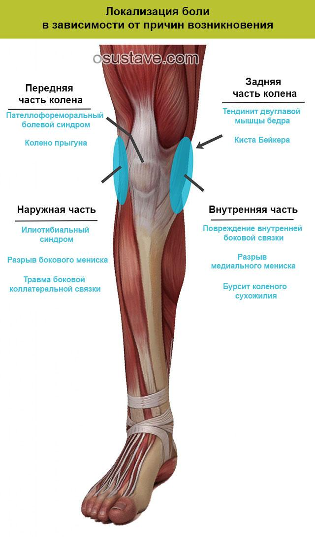 Боль в коленях при приседании и вставании: возможные причины, чем лечить