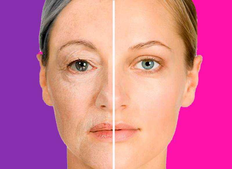 Подтяжка лица в домашних условиях * средства для упругости кожи, маска, как сделать без операции народными средствами