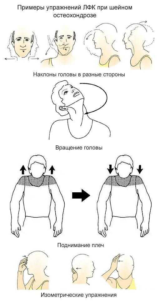Лфк при остеохондрозе: комплекс упражнений и техника их выполнения
