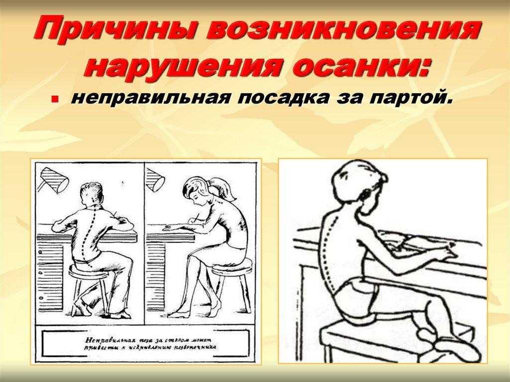 Нормальная осанка и патологическая осанка. от чего зависит нарушение осанки у ребенка