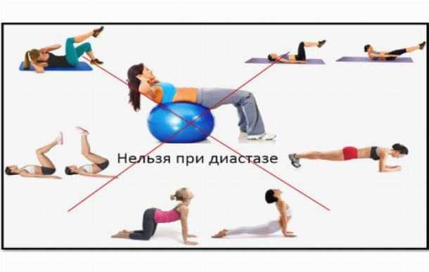 Как убрать галифе на бедрах: лучшие упражнения в домашних условиях, в тренажерном зале