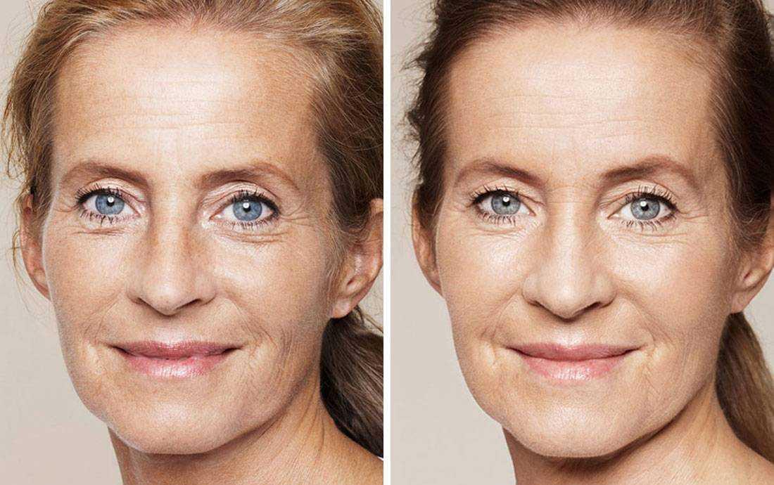 Омолаживающий макияж: как сделать макияж омолаживающий лицо и глаза - секреты и фото