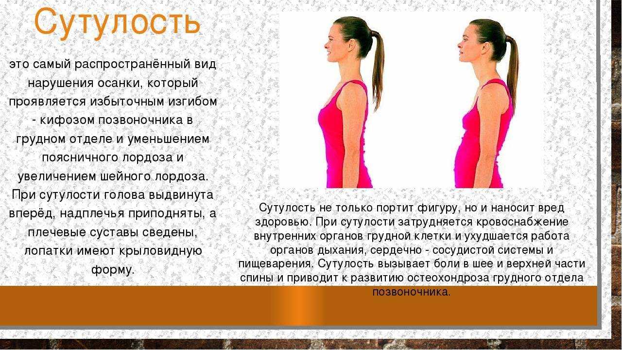 Комплекс упражнений для укрепления осанки | спина доктор