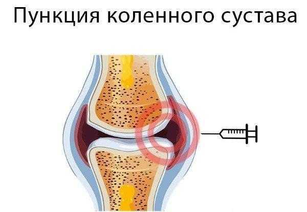 Хруст в коленях при приседании и вставании чем лечить