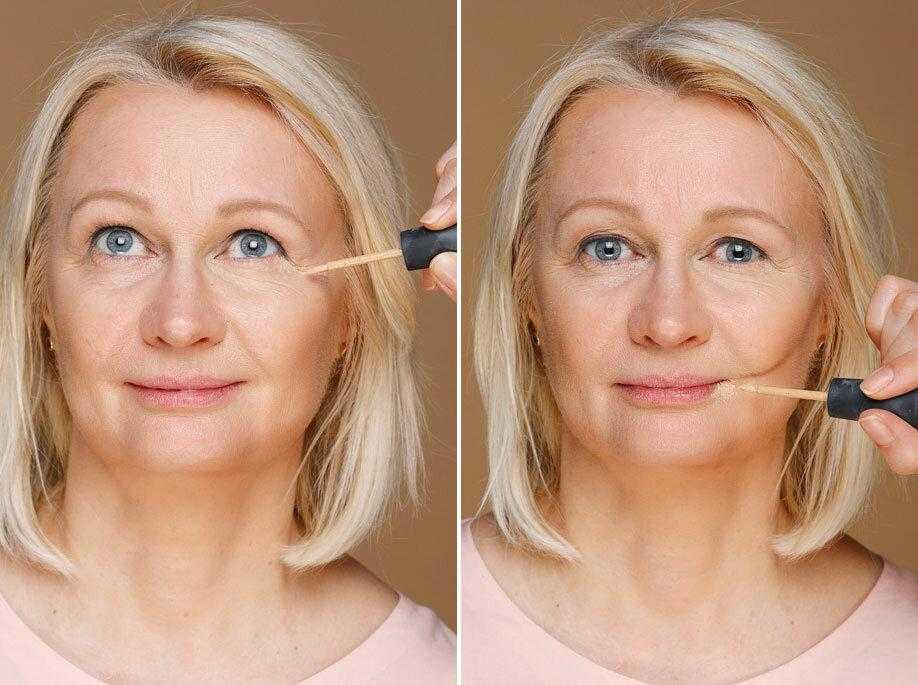 Как омолодить лицо в домашних условиях и у косметолога: топ-10 эффективных способов