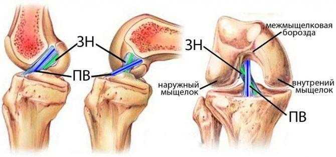 Болят колени при приседании и вставании: чем лечить, причины, симптомы