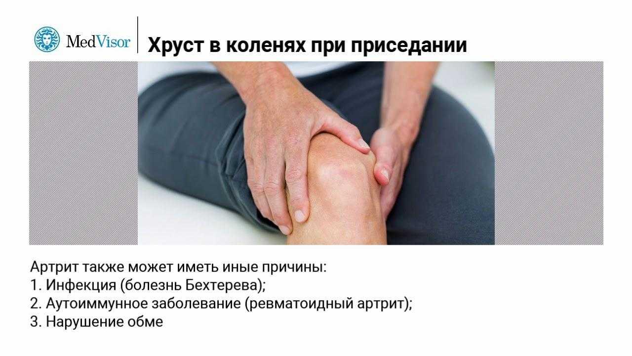 Хруст в коленях при сгибании или разгибании сустава
