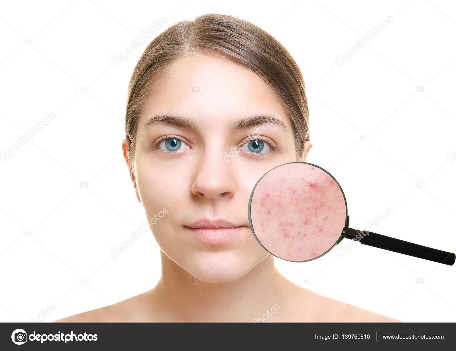 Как убрать пятна от прыщей на лице