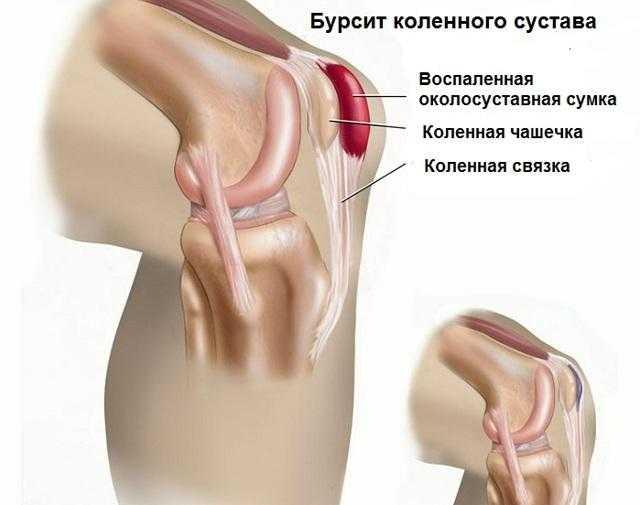 Боль в коленях при приседании и вставании может быть симптомом опасных заболеваний суставного аппарата Причины болей до и после тренировки и их лечение