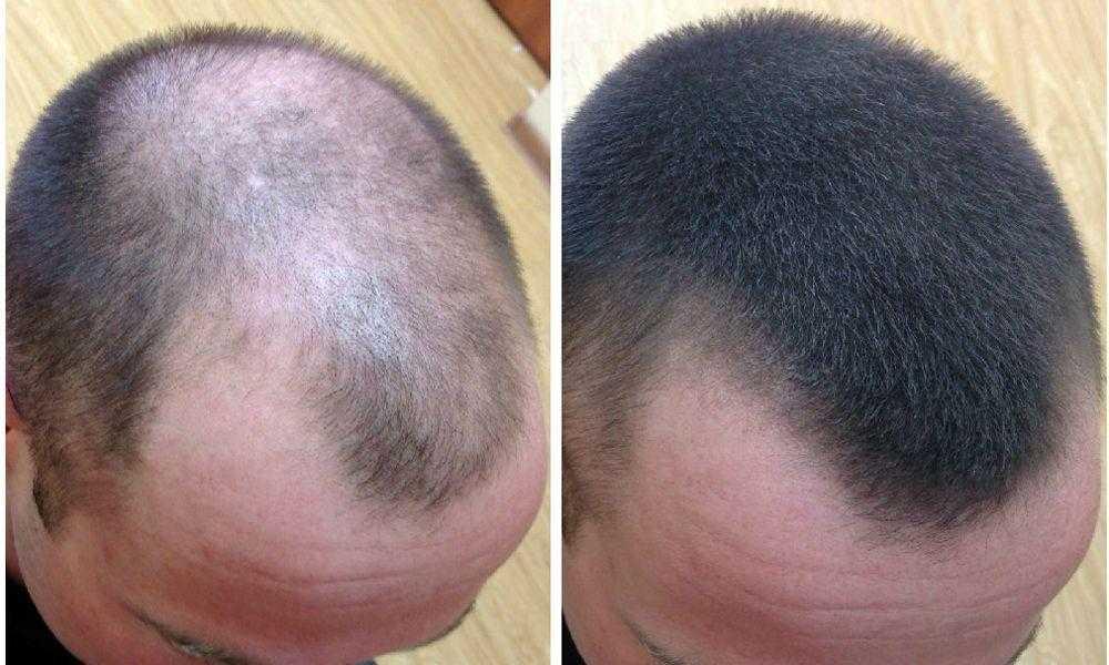 Можно ли быстро и эффективно восстановить волосы, которые утратили свою жизненную силу Можно и нужно, в этом вам поможет специальные SPA маски и процедуры