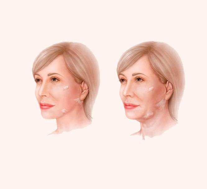 Фейслифтинг после 50 лет — подтяжка лица без операции в домашних условиях: описание процедур, рекомендации, отзывы