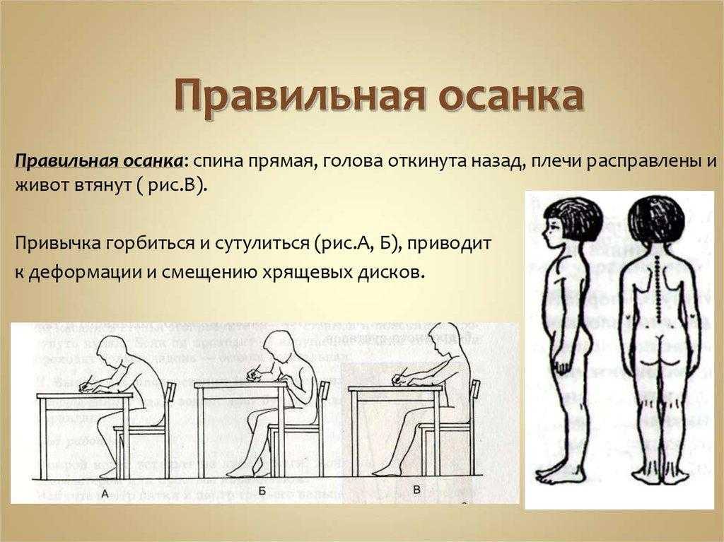 Комплекс упражнений для выпрямления осанки | спина доктор