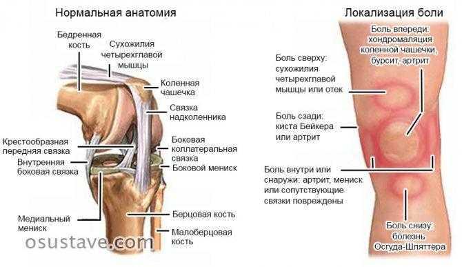 Хруст в коленях при сгибании и разгибании: почему хрустят при приседании, что делать, лечение